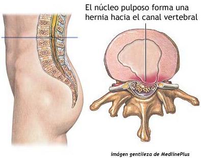 El dolor entre los riñones y los bordes sobre la espalda
